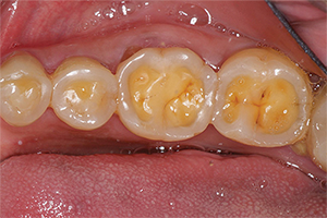 This is how erosion shows on your teeth