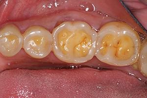 Näin hammaseroosio näkyy hampaissa